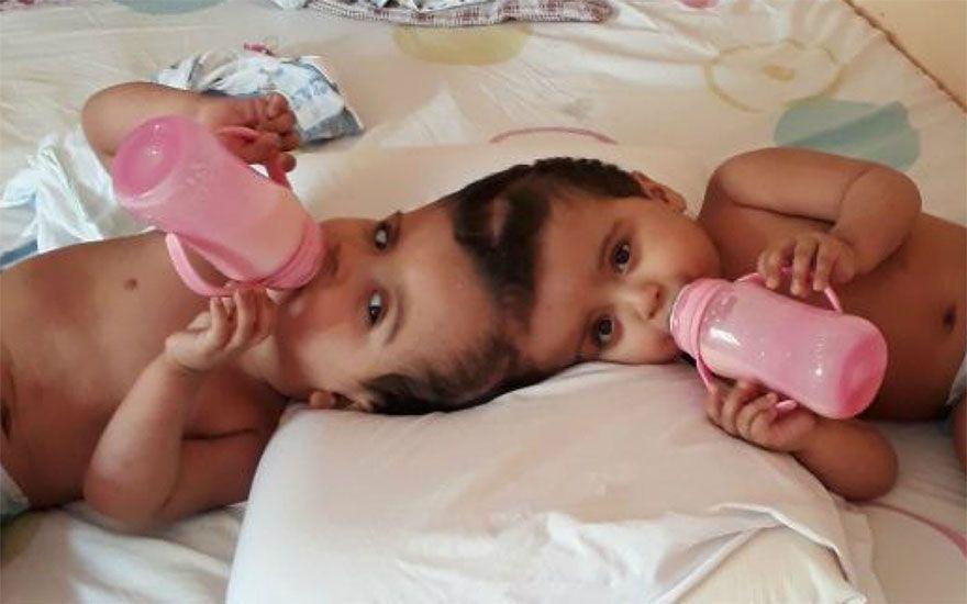 Revide, Após 20 horas de cirurgia, irmãs siamesas são completamente separadas em Ribeirão, siamesas, cirurgia, separação, finalizado, médicos, hospital, clínicas, ribeirão preto